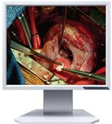 MDC1900-1LG医用显示器