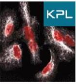 LumiGLO Chemiluminescent Peroxidase SubstrateWB显色