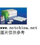結核桿菌(Tb)抗體(測血清) 型號:WKHS-J018/進口