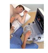 西门子SIEMENS ACUSON X150彩色多普勒超声诊断系统